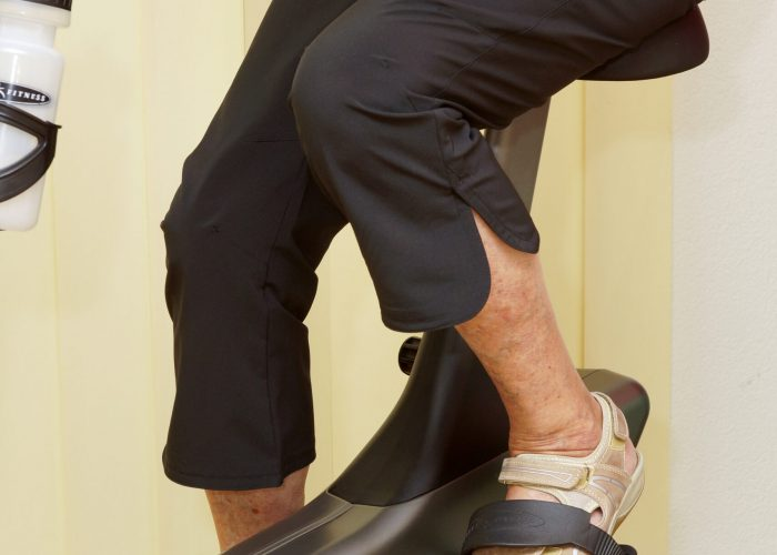 Fahren auf dem Hometrainer mit verkürzter Pedalenkurbel bei Knietotalprothese